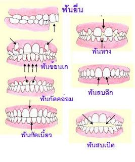 ปัญหาฟันรูปแบบต่างๆ